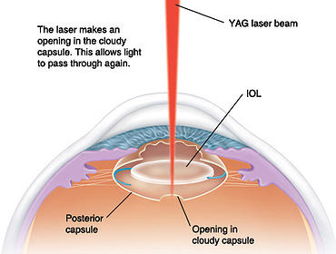 Posterior Capsulotomy diagram