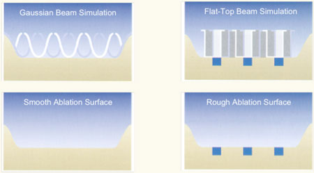 Ablation Profiles-Gaussian Beam vs. Flat-top Beam